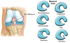 I've torn my meniscus. It looks like the torn flap is causing my knee pain. Sort of like grit in the gears. Image from the American Academy of Orthopedic Surgeons.